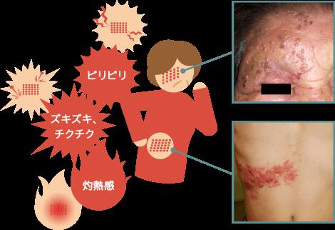 帯状疱疹はピリピリ、チクチクという痛みを伴い、写真のような水ぶくれなどが帯状に現れる