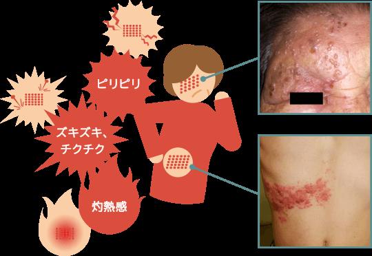 帯状疱疹の症状