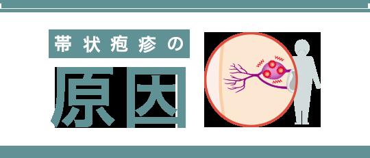 帯状疱疹 原因